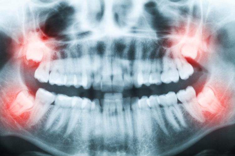 rtg snímok zmien postavenia zubov